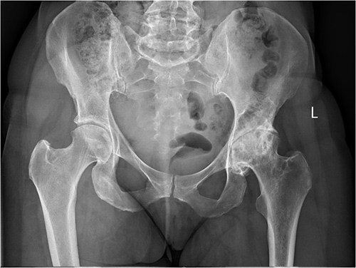 Direct Anterior Hip Replacement Waterford Hip Injury